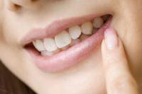 矯正歯科とホワイトニング